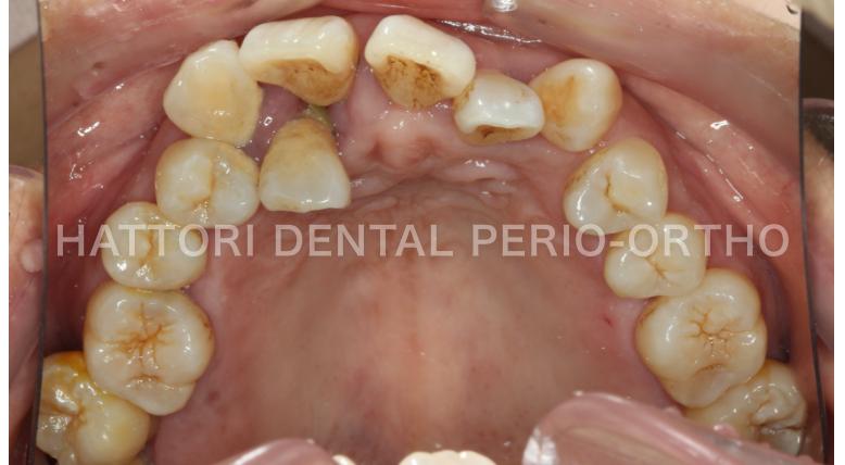 重度歯周炎の口腔内
