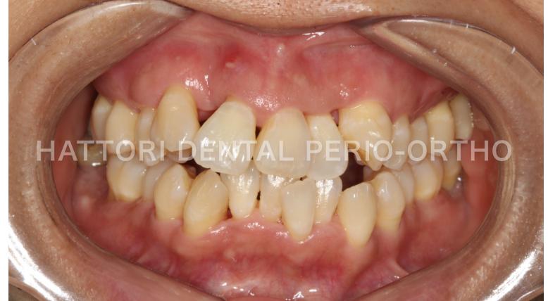 歯周病治療後の口腔内