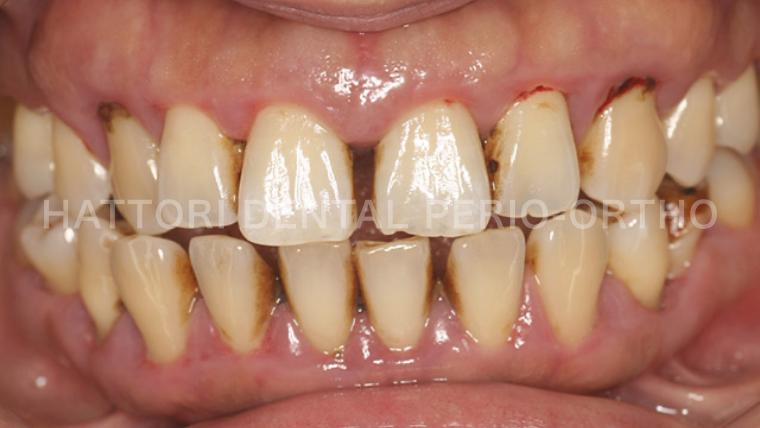歯周治療 治療前